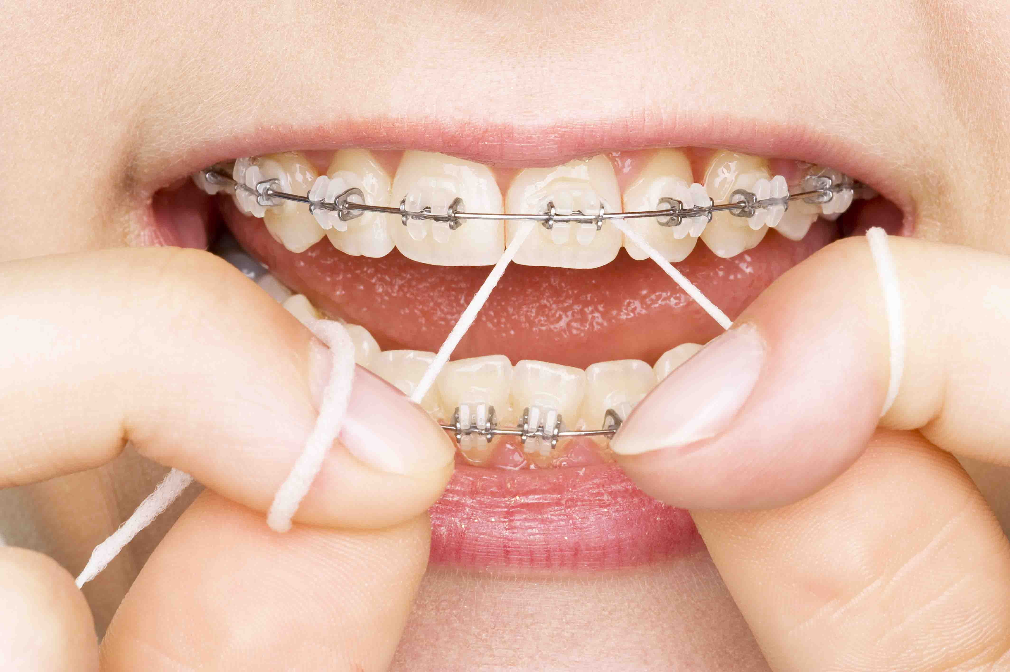 Dental Implants Melbourne - The Best Treatment by The Leading Experts